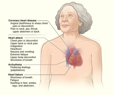 heart_disease_signs_and_symptoms 1