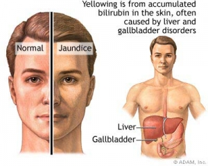 6 Risk Factors for Liver Disease